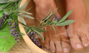 Шпора на пятке – симптомы и лечение в домашних условиях