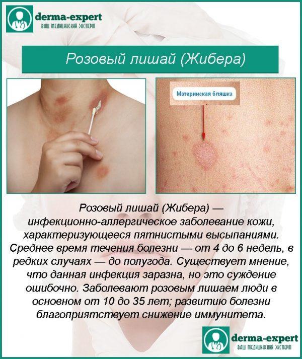 Розовый лишай – лечение, мазь: ТОП-15 лучших