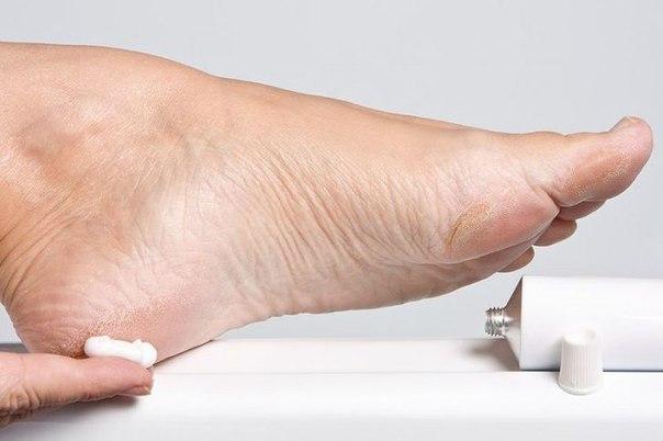 Трещины на пятках – лечение аптечными мазями и народными средствами