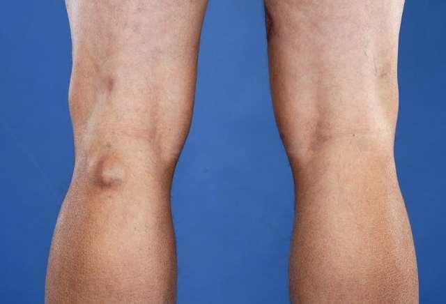 Киста Бейкера коленного сустава – симптомы и лечение