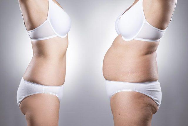 Как убрать жир с живота и боков у женщин и мужчин: ТОП-17 способов