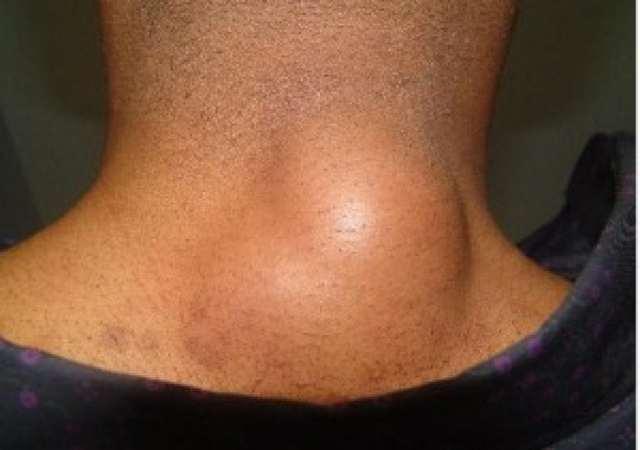 Жировики на теле – причины, как избавиться?