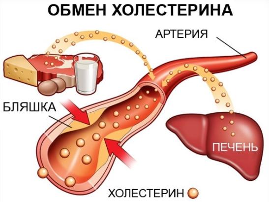 Как понизить холестерин в домашних условиях: ТОП-20 способов