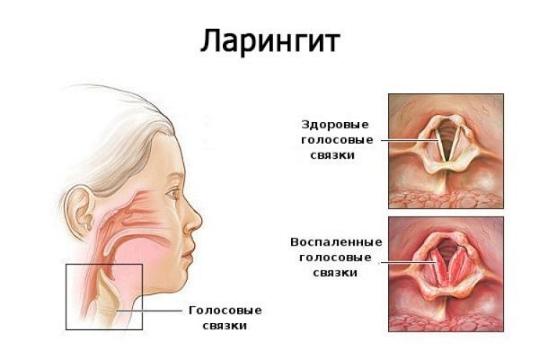 Как быстро вылечить горло в домашних условиях: ТОП-17 средств