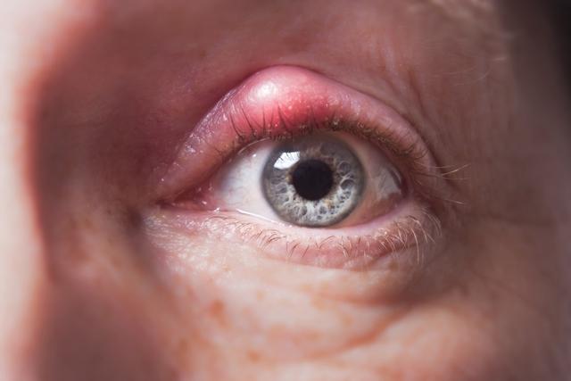 Ячмень на глазу – как лечить быстро дома у взрослого?