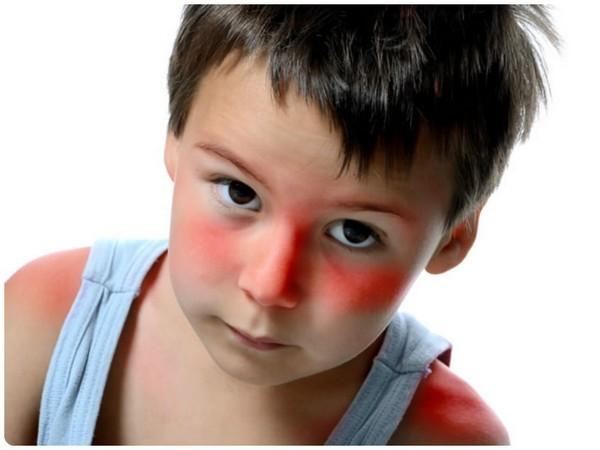Красные пятна у ребенка на теле