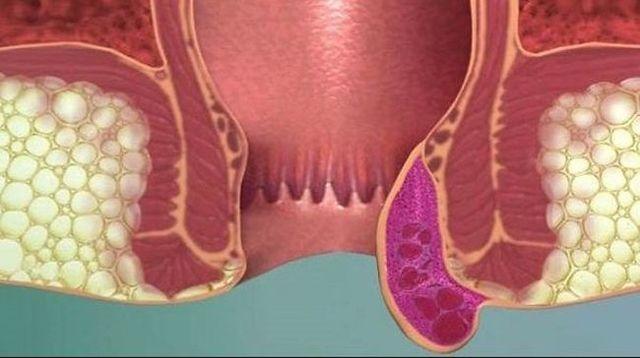 Зуд в заднем проходе у мужчин – причины и лечение