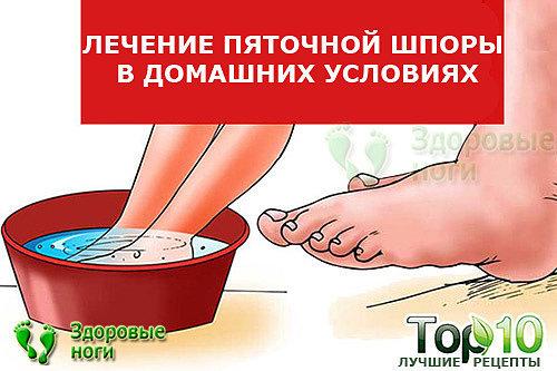 Шпоры на пятках – лечение быстрое, эффективное в домашних условиях: 10 средств