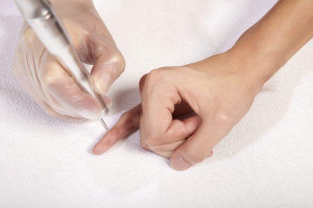 Как избавиться от бородавок быстро и навсегда: ТОП-18 средств