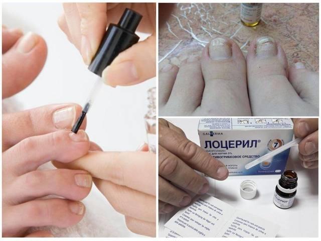 ТОП-12 лучших средств от грибка ногтей на ногах