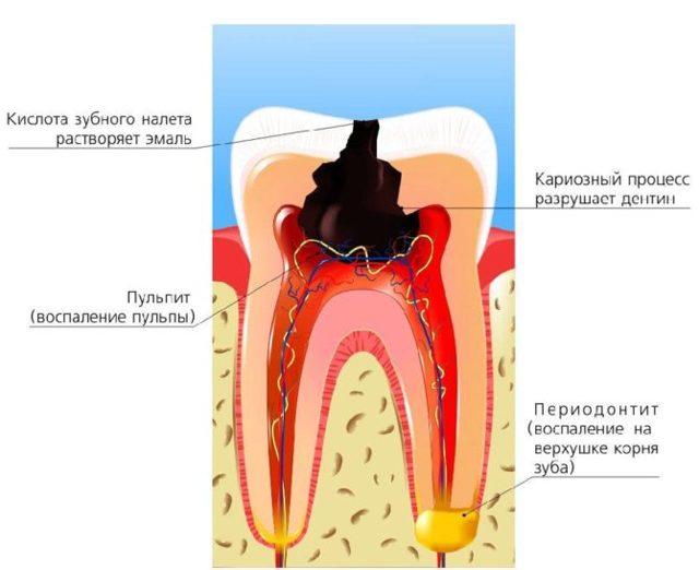 Зубная боль – чем снять в домашних условиях у взрослого: ТОП-16 способов