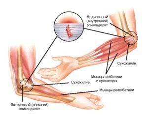 Эпикондилит локтевого сустава – симптомы и лечение