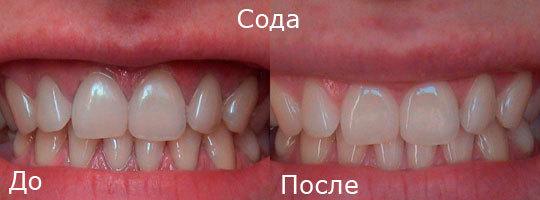 Как отбелить зубы в домашних условиях быстро от желтизны и серого: ТОП-20 способов