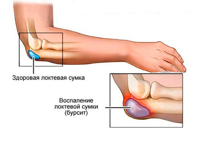 Бурсит локтевого сустава – лечение: мази и гели