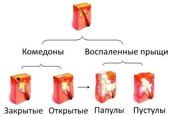 ТОП-15 масок для лица с желатином для подтяжки кожи лица