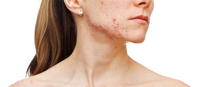 Как быстро избавиться от угрей на лице в домашних условиях за 1 день