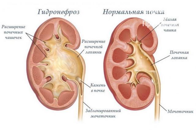 Мочекаменная болезнь у мужчин – симптомы и лечение