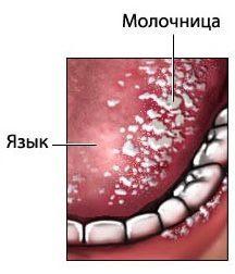 Как лечить стоматит у взрослых во рту в домашних условиях: ТОП-17 средств