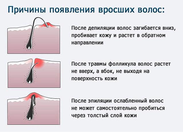 Как избавиться от вросших волос в области бикини: 7 способов