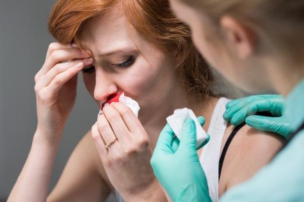 Как остановить кровь из носа?