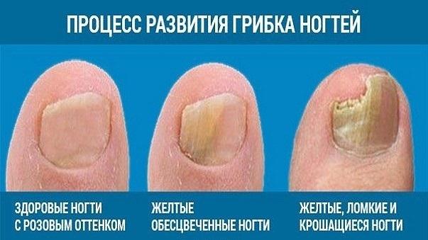 ТОП-16 лучших средств от грибка ногтей: таблетки, мази, растворы, лаки