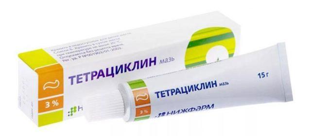 Халязион верхнего века – лечение: ТОП-10 средств