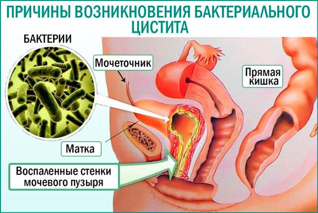 Воспаление мочевого пузыря – симптомы и лечение у женщин, лекарства