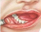 Стоматит у взрослых – лечение в домашних условиях