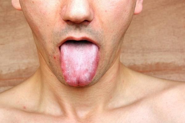 Чем лечить стоматит у взрослых во рту – лекарства: ТОП-13 лучших