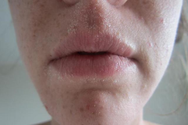 Шелушится кожа на лице – что делать?
