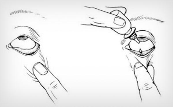 Лечение ячменя на глазу медикаментами: мазь и капли