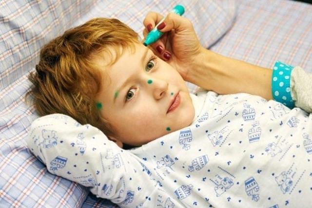 Чем лечить ветрянку у ребенка: ТОП-20 средств