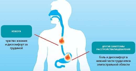 Изжога – причины и лечение в домашних условиях