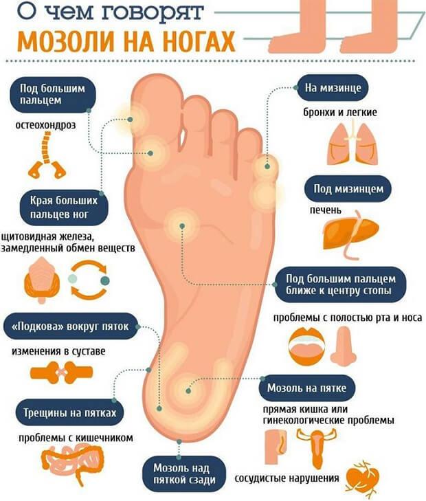 Как избавиться от сухих мозолей на пальцах ног в домашних условиях: 27 лучших способов