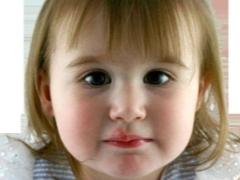 Герпес 6 типа у детей – что это, симптомы и лечение, пути заражения
