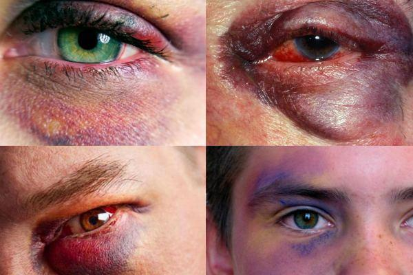 Как быстро избавиться от синяка под глазом: ТОП-16 способов