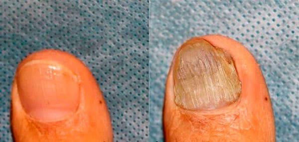 Мазь от грибка ногтей на ногах самая хорошая и недорогая: ТОП-19