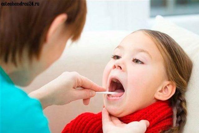 Гнойная ангина у детей: лечение в домашних условиях быстро