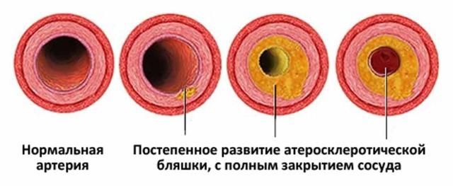 Как почистить сосуды от бляшек в домашних условиях быстро и эффективно: ТОП-18 средств
