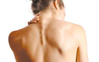 Шейный остеохондроз – симптомы, лечение в домашних условиях