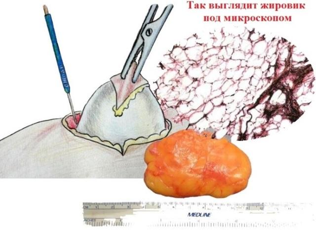 Как избавиться от жировиков на лице: ТОП-10 средств