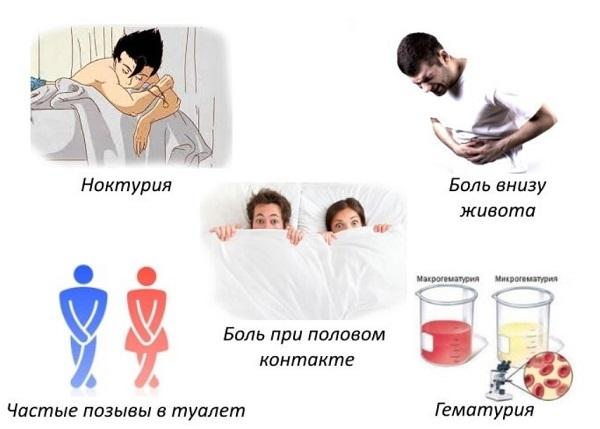 Цистит у женщин – симптомы и лечение в домашних условиях быстро