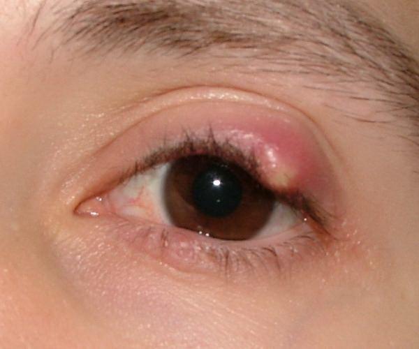 Как лечить ячмень на глазу в домашних условиях быстро у взрослого?
