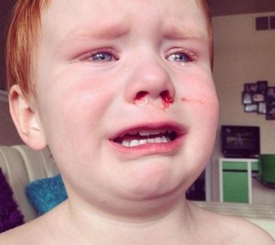 У ребёнка кровь из носа – причины