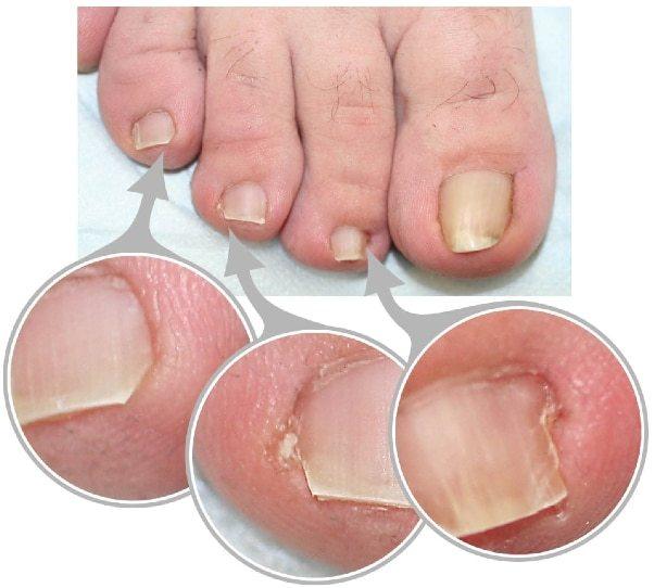 Вросший ноготь на большом пальце ноги – лечение в домашних условиях