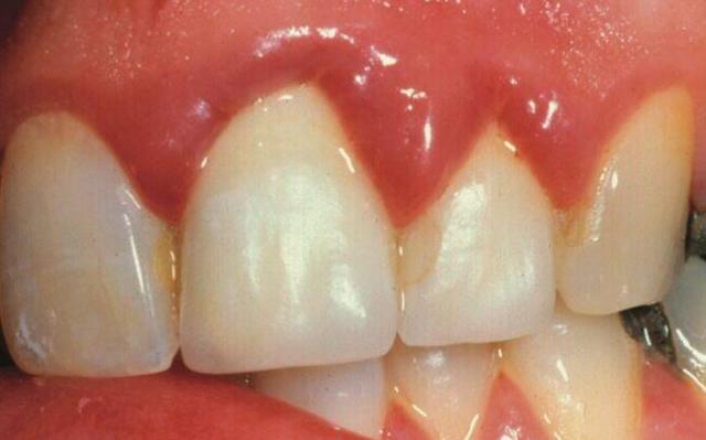 Воспаление десны около зуба – лечение в домашних условиях
