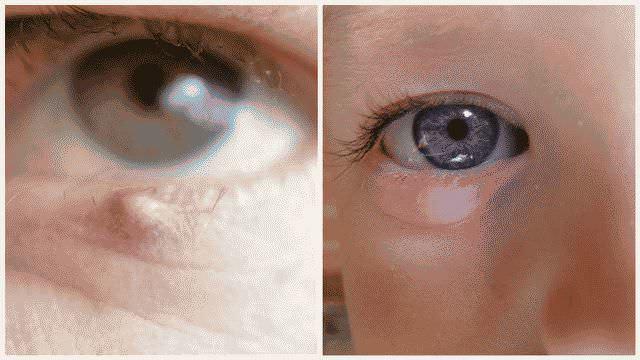 Чем лечить ячмень на глазу в домашних условиях быстро: ТОП-8 средств