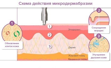 Как осветлить кожу в интимных местах в домашних условиях: ТОП-20 способов